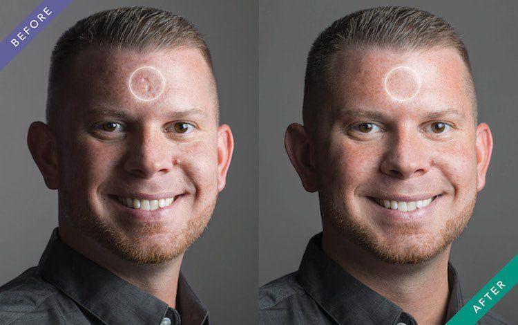 Facial scar cover