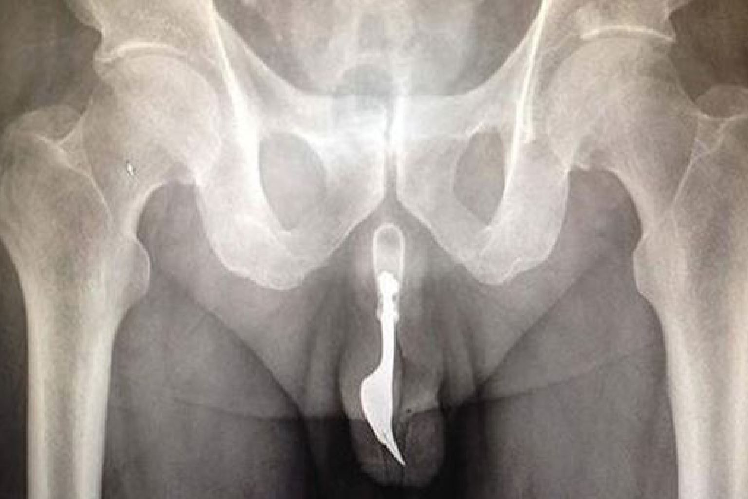 best of Penis side of Hole in