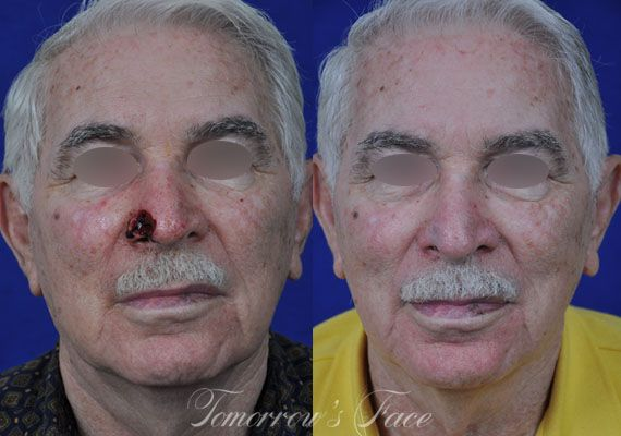 best of Grafting surgery skin Facial