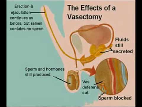Not produce sperm