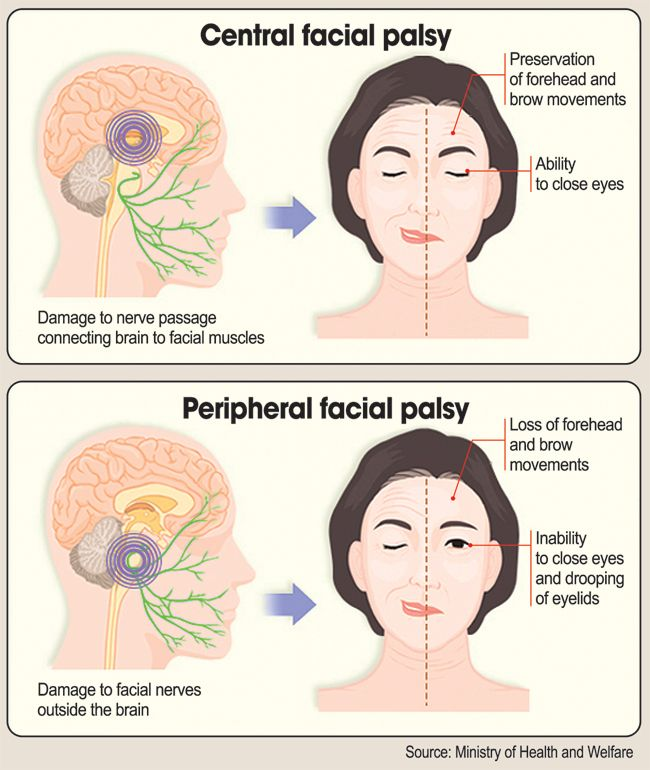 best of Due Facial damage nerve paralysis to