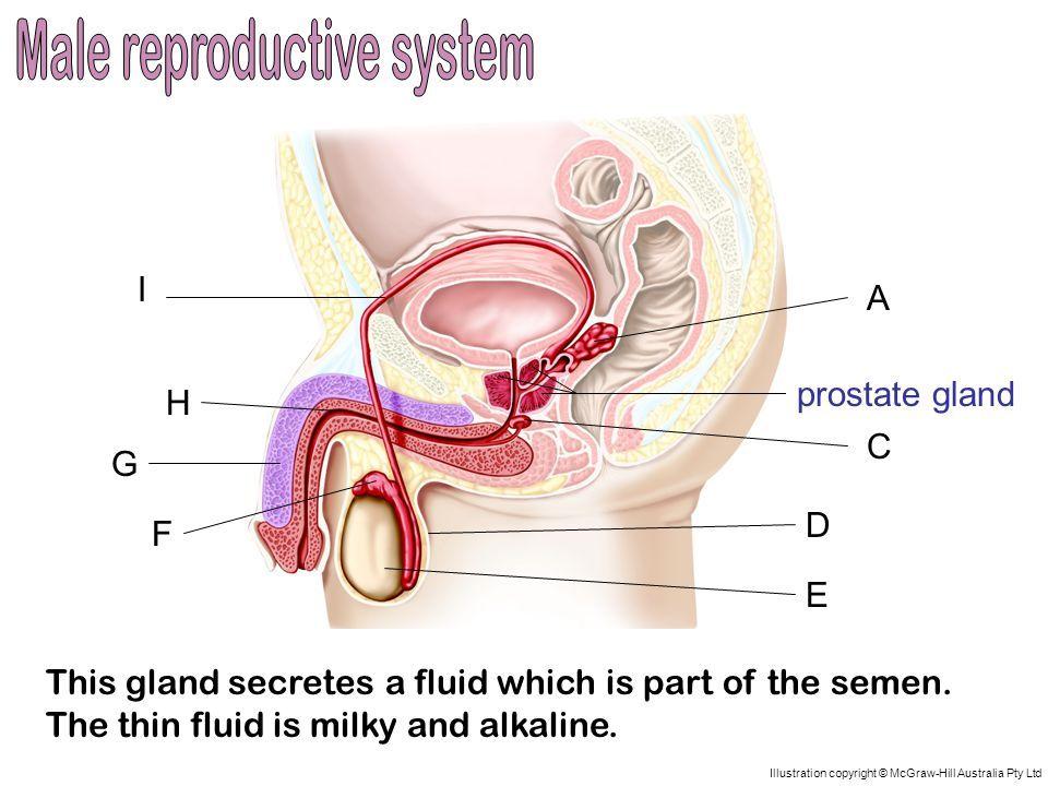 sperm color Prostitis