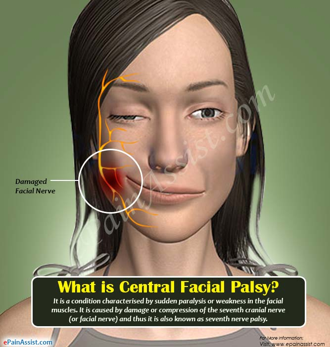 Valentine reccomend Facial paralysis due to nerve damage