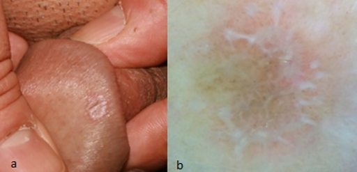 Lightening B. reccomend Skin lesion on penis