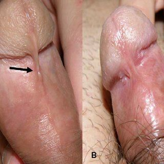 Skin lesion on penis
