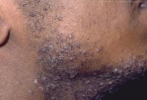 best of Hair bump Facial