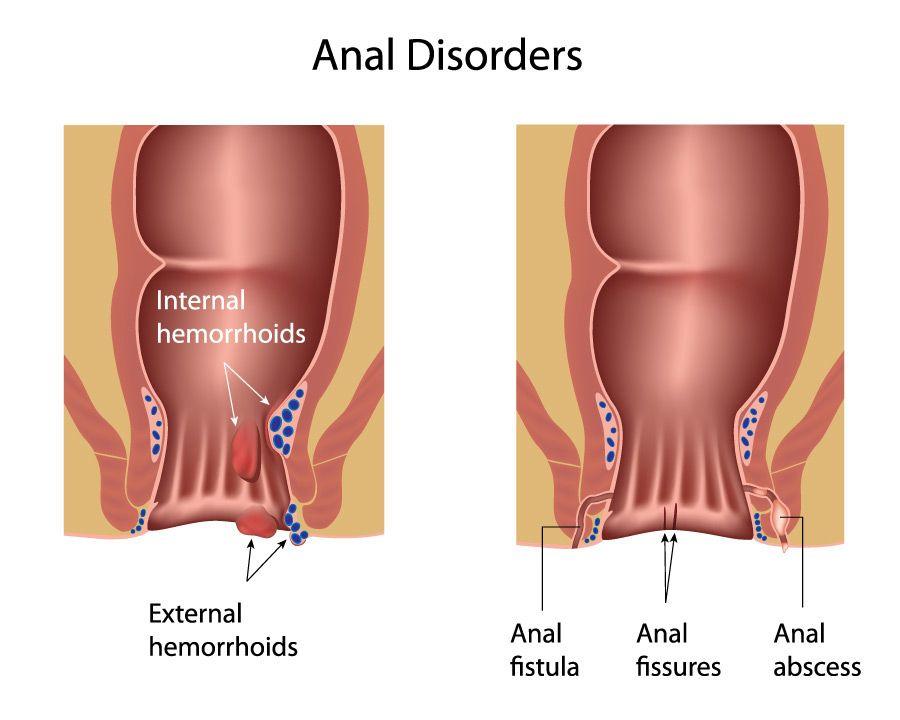 best of Skin anus pregnancy around Extra after