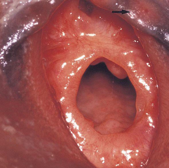 best of Lips Abnormal vagina