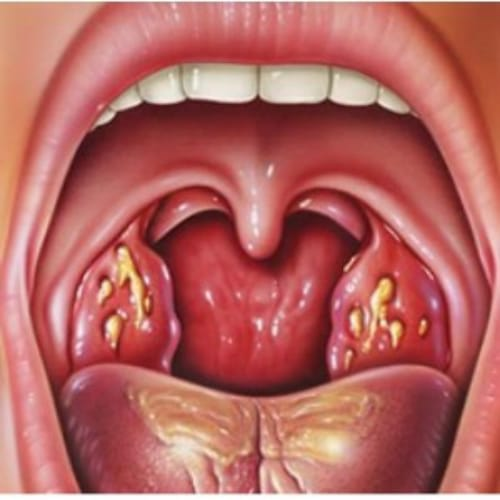 Sore throat after oral sex