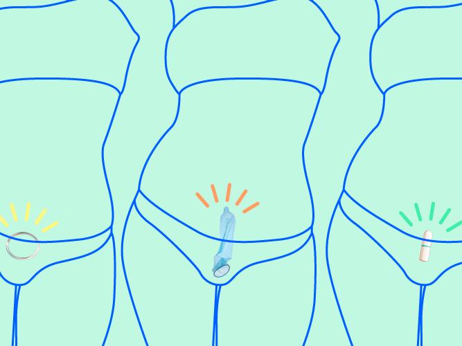Golf balls inserted into vagina