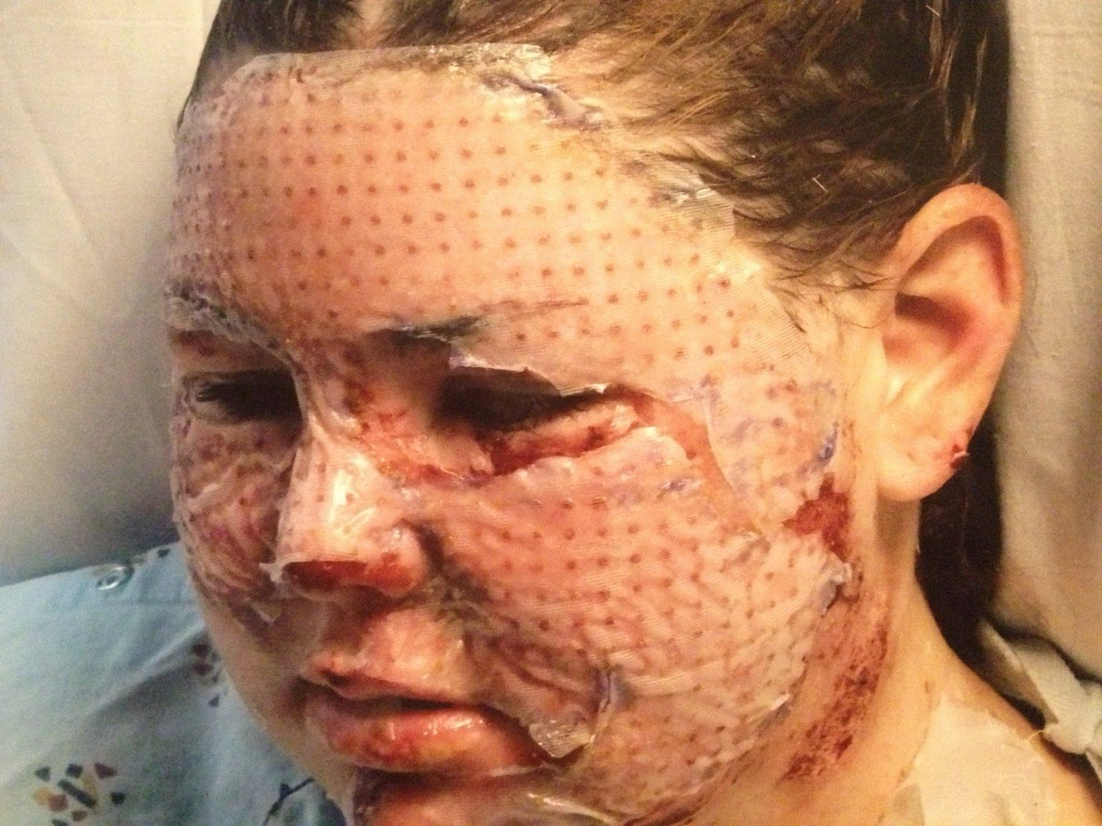 Facial skin grafting surgery