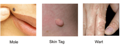 Marigold reccomend Extra skin around anus after pregnancy