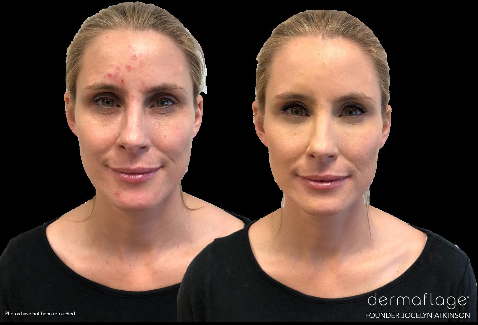 Blue E. reccomend Facial scar cover