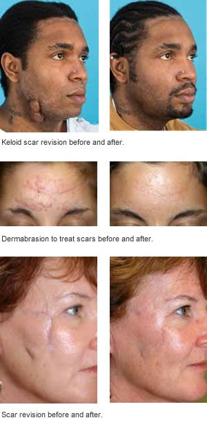 best of Scarring Reduce facial