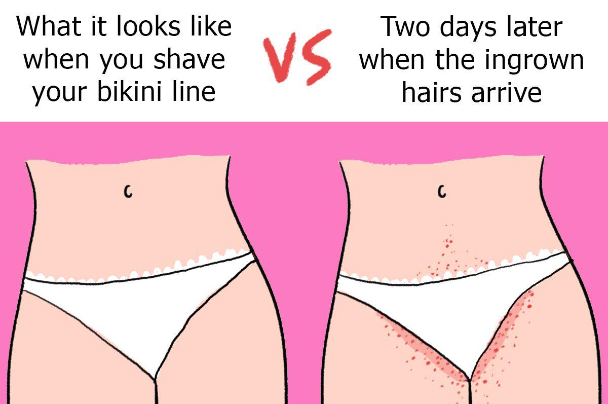 Slap H. reccomend Haw do u shave ur bikini area