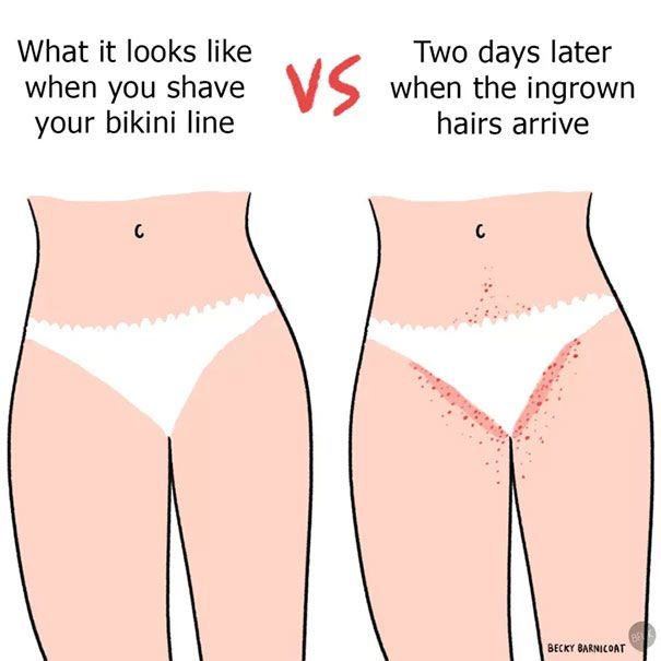 Picture of bikini lines shaved